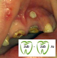 15 Помилок про дитячої стоматології.