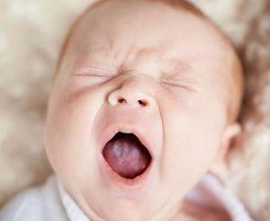 Основні причини білого нальоту на язиці у дитини