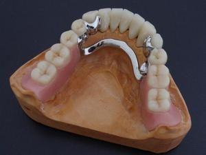 Бюгельні зубні протези: що це таке?