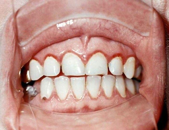 Біль в яснах між зубами