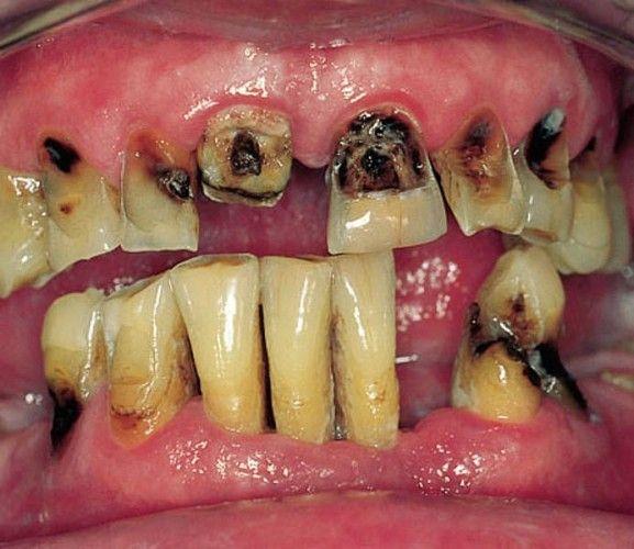 Болить запломбований зуб