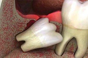 Чи боляче видаляти зуб мудрості