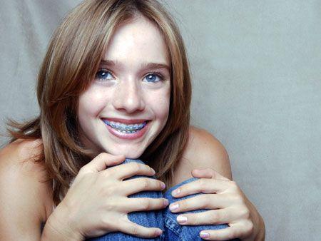 усміхнена дівчинка з брекетами