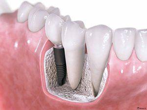 Ціна зубних імплантантів: скільки коштує нова посмішка?