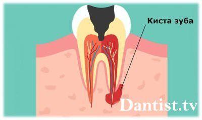 Чим небезпечна кіста зуба?