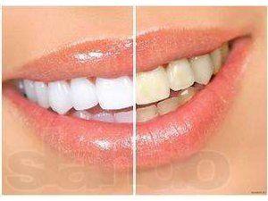 Чим відбілити зуби в домашніх умовах без шкоди для емалі?