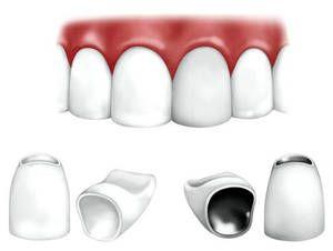 Що робити, якщо болить зуб під коронкою?