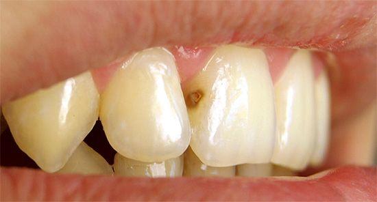Що робити, якщо на передніх зубах з'явився карієс