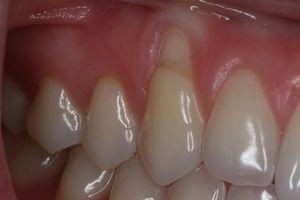 Що робити, якщо оголилася шийка або корінь зуба