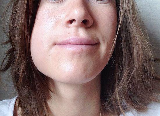 Що робити, якщо після процедури видалення зуба опухла щока?