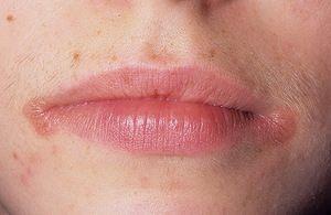 Що робити, якщо в куточку рота або на губі з'явилася болячка?