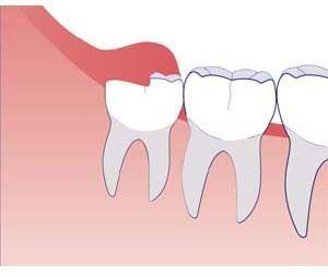 І знову зуб мудрості дається взнаки, болить і опухла ясна