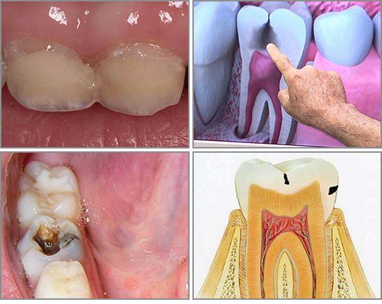 Що таке карієс зубів
