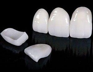 Що таке зубні вініри: переваги, матеріали і ціна