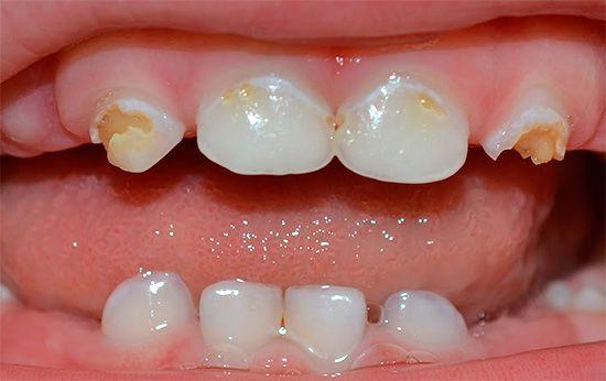 Що важливо знати про карієс молочних зубів у дітей раннього віку