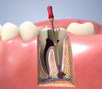 Депульпація зуба перед протезуванням