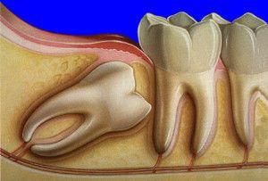 Дістопірованних зуб