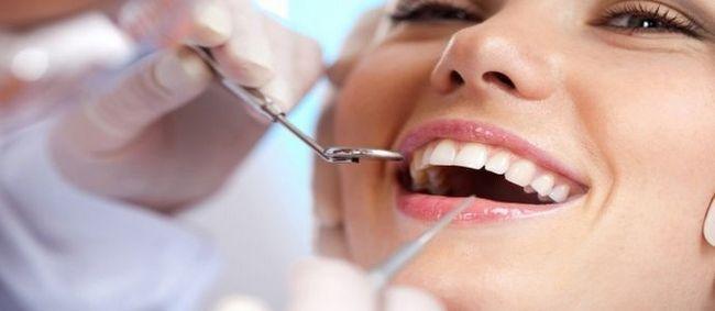 Фторування зубів: ціна та відгуки