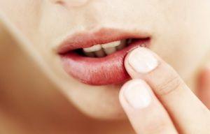 Герпес в роті: причини, лікування, фото