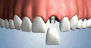 Імплантація зубів під ключ: особливості, переваги, ціни