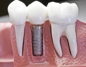 Імплантація зубів: за і проти, особливості зубних імплантів