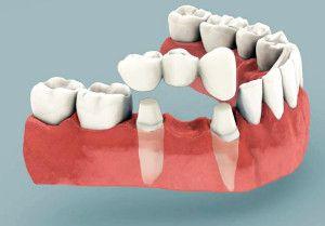Імплантологія. Зубні мости