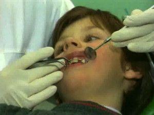 Виправляємо криві зуби