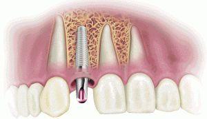 Етапи імплантації зубів