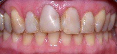 Якісна полірування - запорука успіху при відновленні зубів композитними вінірами.