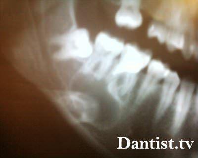 Як видаляють кісту зуба?