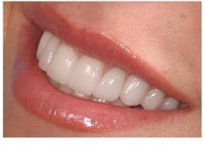 Ціни на реставрацію зубів