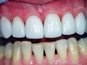 Як відновити зубну емаль, ціна процедури