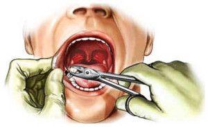 Як вирвати зуб самостійно