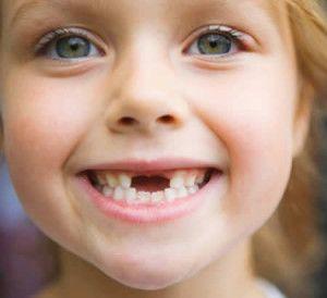 Як виривають молочні зуби