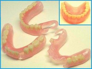 Які зубні протези вибрати