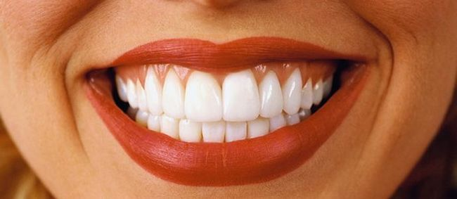 Які зуби краще вставити: відгуки