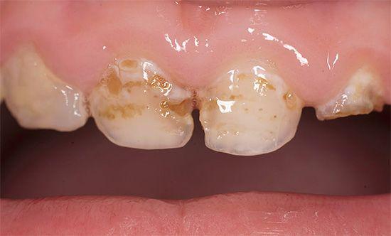 Карієс молочних зубів у дітей і його лікування: що важливо знати батькам