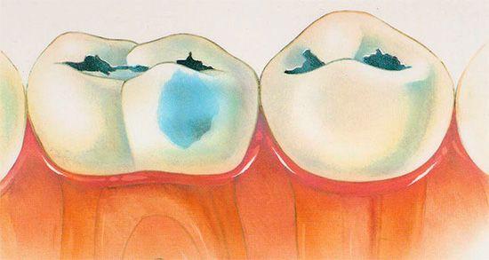 Карієс зубів у декомпенсованій формі
