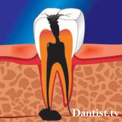 Кіста на зубі: що робити, симптоми і лікування