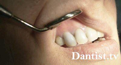 Кіста переднього зуба: симптоми, наслідки та лікування
