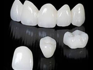 Коронки на зуби з діоксиду цирконію, відгуки