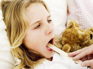 Лікування хронічного тонзиліту в домашніх умовах