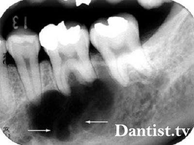 Лікування кісти без видалення зуба: ціна і фото
