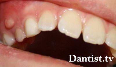 Лікування кісти кореня зуба: ціна і фото