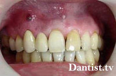 Лікування кісти зуба лазером: ціна і фото