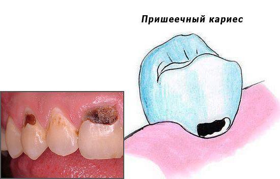 Лікування пришеечного карієсу