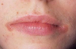Мазь і ліки від заїду в куточку рота, лікування ангуліта