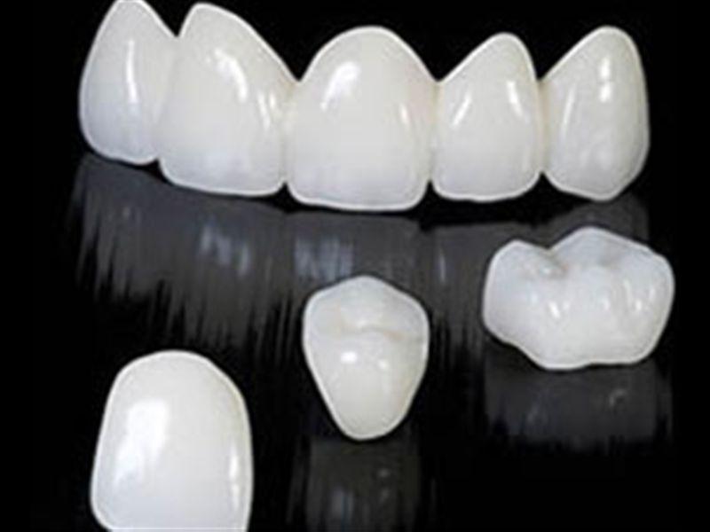 Металокераміка на передні зуби - які відгуки пацієнтів?