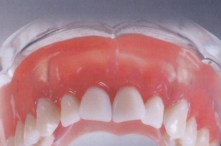 Нейлонові зубні протези