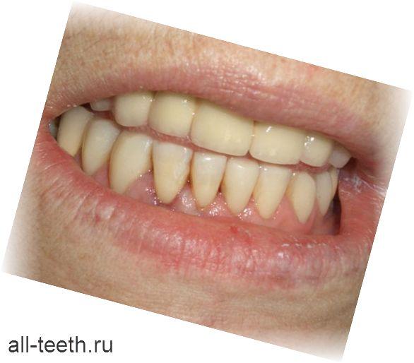 Нижні зуби - анатомічні особливості, видалення і протезування